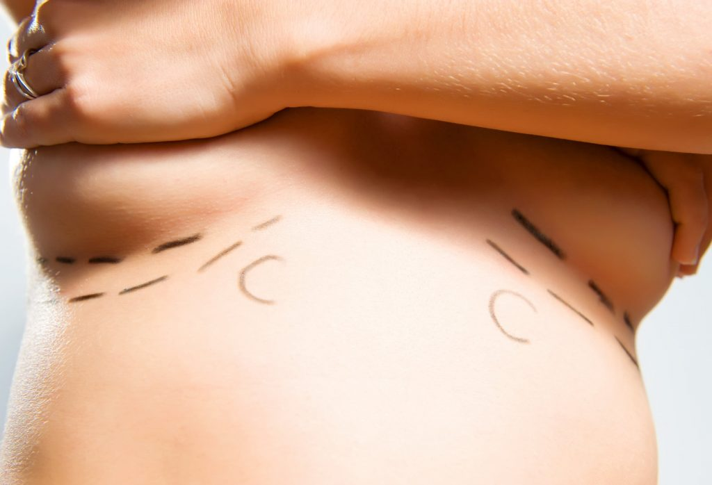 woman breasts augmentation planning